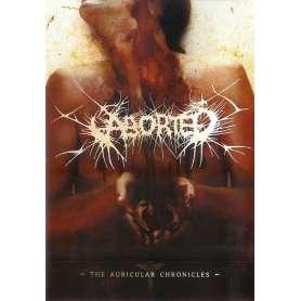 ABORTED  - The Auricular...