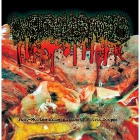 POST-MORTEM - EXAMINATION OF PUTRID CORPSE